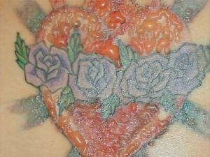 аллергия на татуировку фото