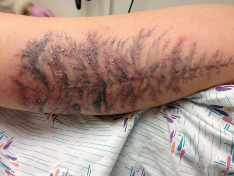 татуировка риски