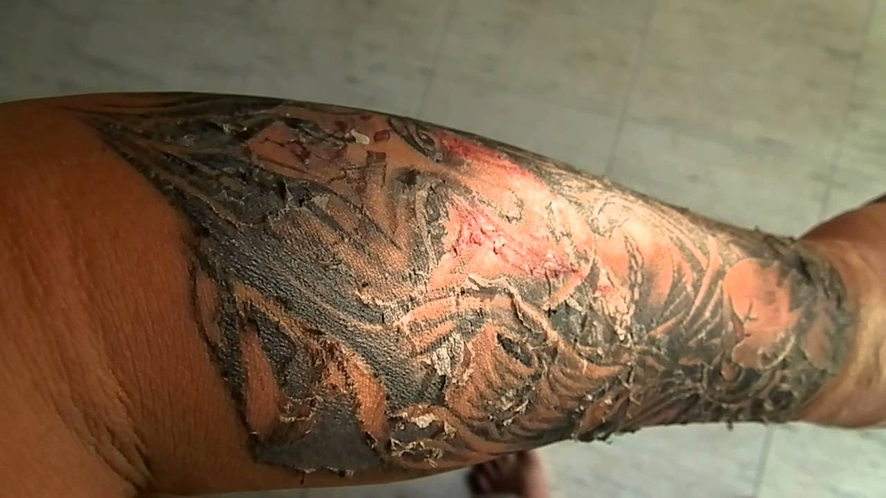 татуировка шелушится почему и что делать