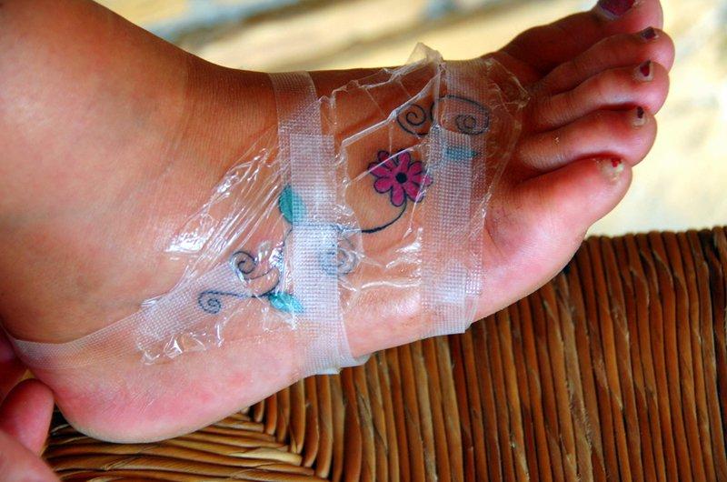 Как долго и сколько болит тату новая после нанесения и что делать, если болит татуировка